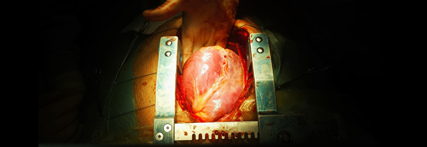 Close up of heart in chest cavity