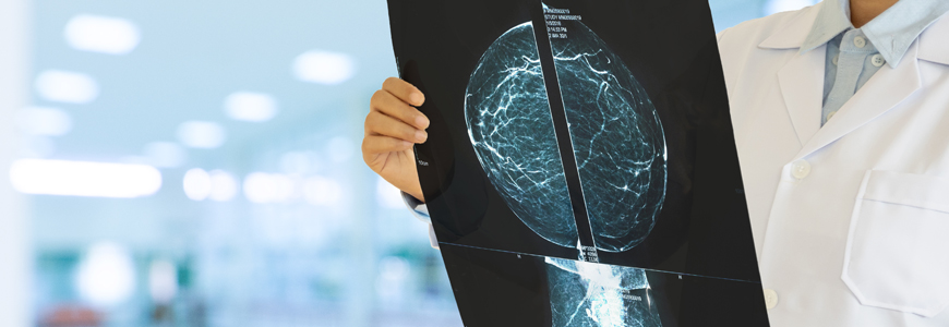 Physician holding breast scan