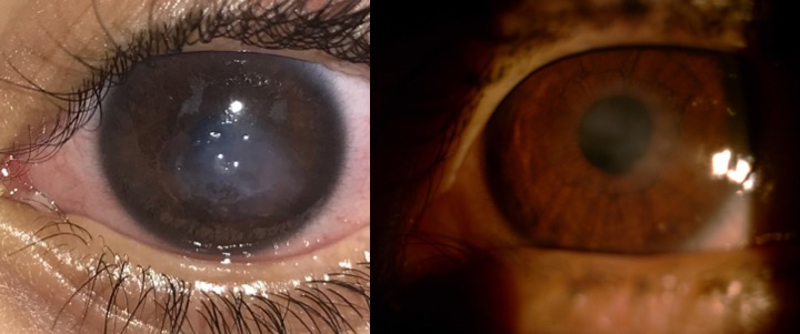 Image of cornea before and after surgery