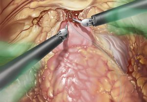 Robotic Assisted Prostatectomy