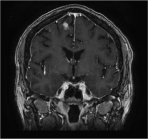CPT_Issue52_Neurology_Figure2