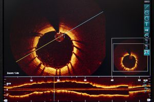 Coronary OCT (Optical Coherence Tomography) showing an artery fitted with a stent. Cardiology department of Saint-Philibert hospital (GHICL), Lille, France.