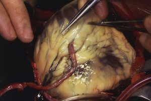 Coronary artery bypass graft.  Distal anastomosis of vein to coronary artery.
