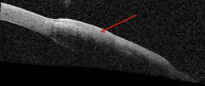 FIGURE 2. Anterior segment optical coherence tomography reveals a thickened, hyper-reflective epithelium (red arrow)