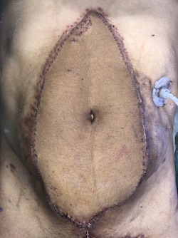 Abdomen with stitches