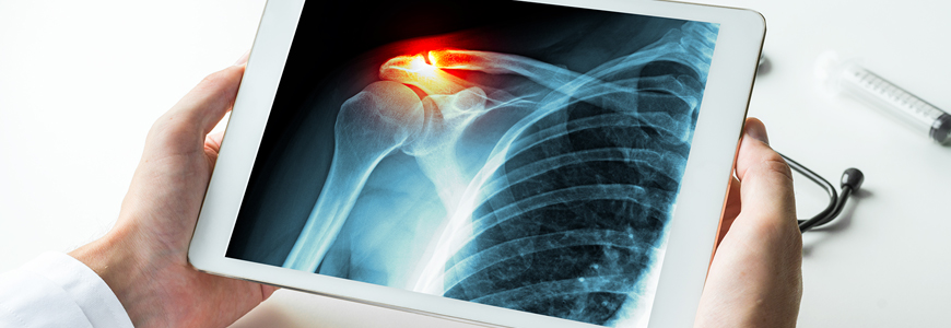 Shoulder radiograph with added pain indicator