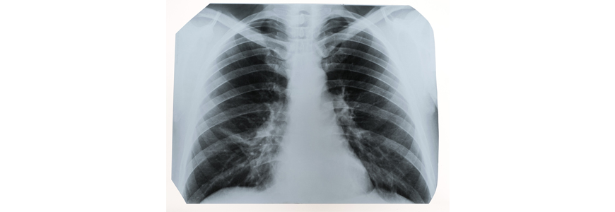 Image of diseased lung