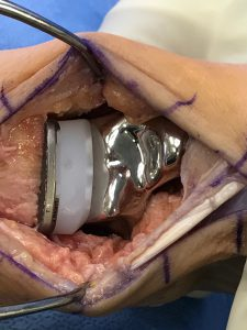 FIGURE 3: Intraoperative photograph shows the 3-D–printed total talus and a poly and tibial component from a total ankle replacement inserted.