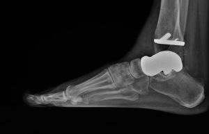 FIGURE 4: Postoperative radiograph shows 3-D–printed talus with the tibial component of a total ankle in place.