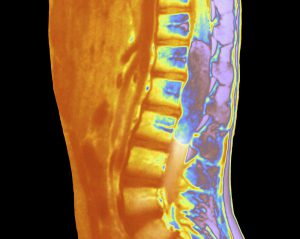 Spinal cord cancer. Colored magnetic resonance imaging (MRI) scan showing a cancerous tumor growing in the spinal cord of a 10 year old girl. This is a side (sagittal) view. The malignant tumor (purple oblong just to the right of center) is growing next to three of the vertebrae of the spinal column (down center). MRI scans produce slice images of the body using pulses of radio waves and a powerful magnetic field.
