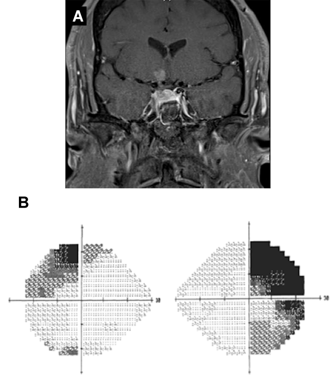 FIGURE 2: A) MRI demonstrating that optic chiasm has been elevated; B) Patient's visual field following surgery