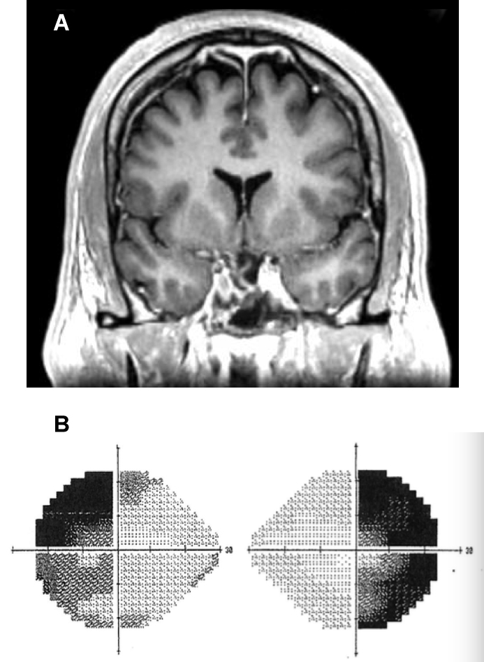 FIGURE 1: A) MRI revealing herniation of optic chiasm; B) Patient's visual field