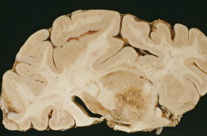Neurology Diagnose This - What condition does this image depict? - July 19, 2016