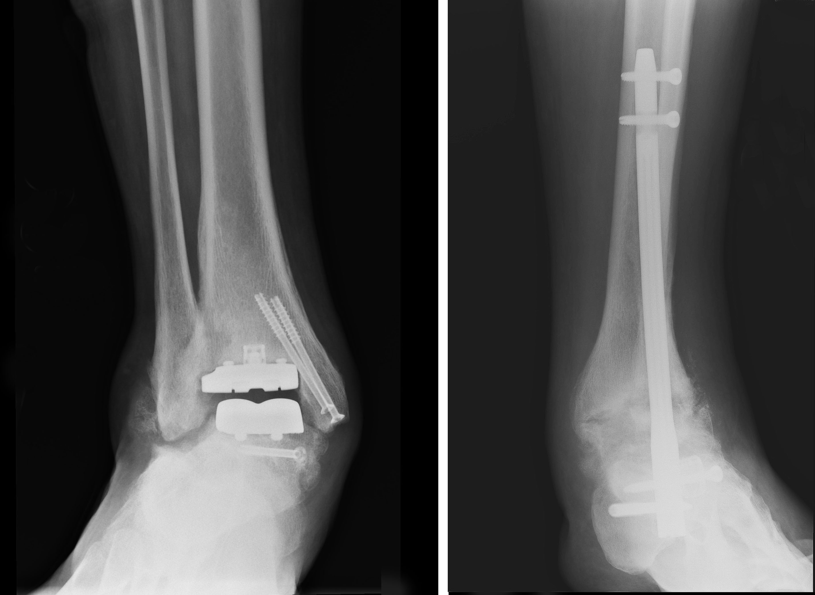 Postoperative right and left ankles