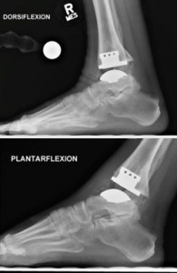 Figure 2. Radiographs of ankle arthroplasty at 1-year follow-up, demonstrating preserved range of motion