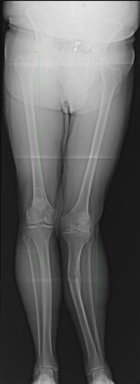 The patient's preoperative alignment showing a significant tibial malalignment.