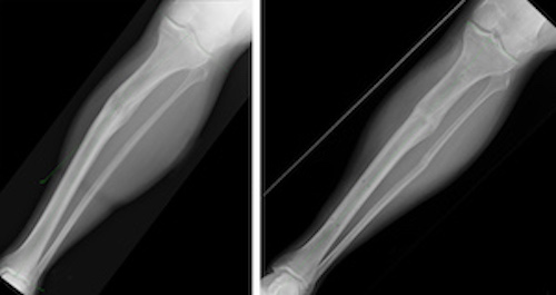 The patient's tibia preoperatively (left) and nine months postoperatively (right), following deformity correction.