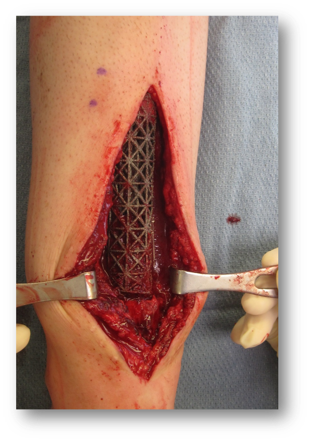 Intraoperative photo shows implant being positioned