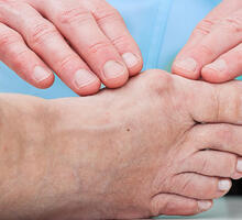 New Technique Eases Discomfort of Traditional Bunion Surgery