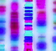 Genetic Testing for Lynch Syndrome Can Lead to Familial Cancer Diagnoses