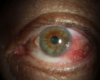 Middle-Aged Man Develops OSSN After Years of Sun Exposure