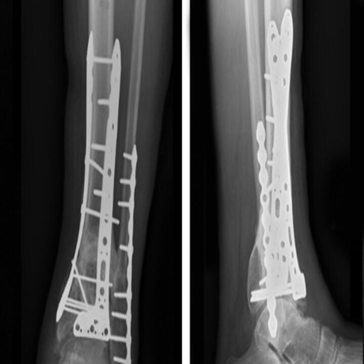 Radiographs of left ankle taken six months postop