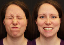Figure 1: Facial movement before tumor re-resection