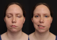 Figure 2: Facial paralysis after tumor re-resection