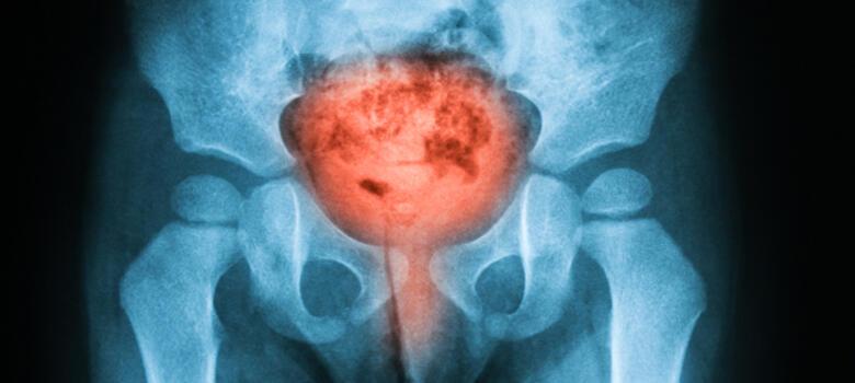 MRI of bladder