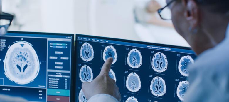 Doctors reviewing brain radiographs